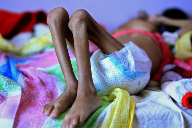 MALNOURISHED. A Yemeni child suffering from malnutrition lies on a bed at a treatment centre in a hospital in the capital Sanaa on October 6, 2018. Photo by Mohaemmed Huwais/AFP