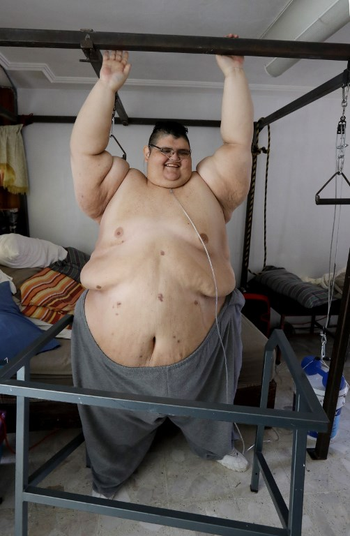 Mexican man, once the worlds fattest, dreams of walking again