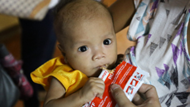 JOEMAR. Joemar suffers from acute malnutrition. Images from UNICEF Philippines.