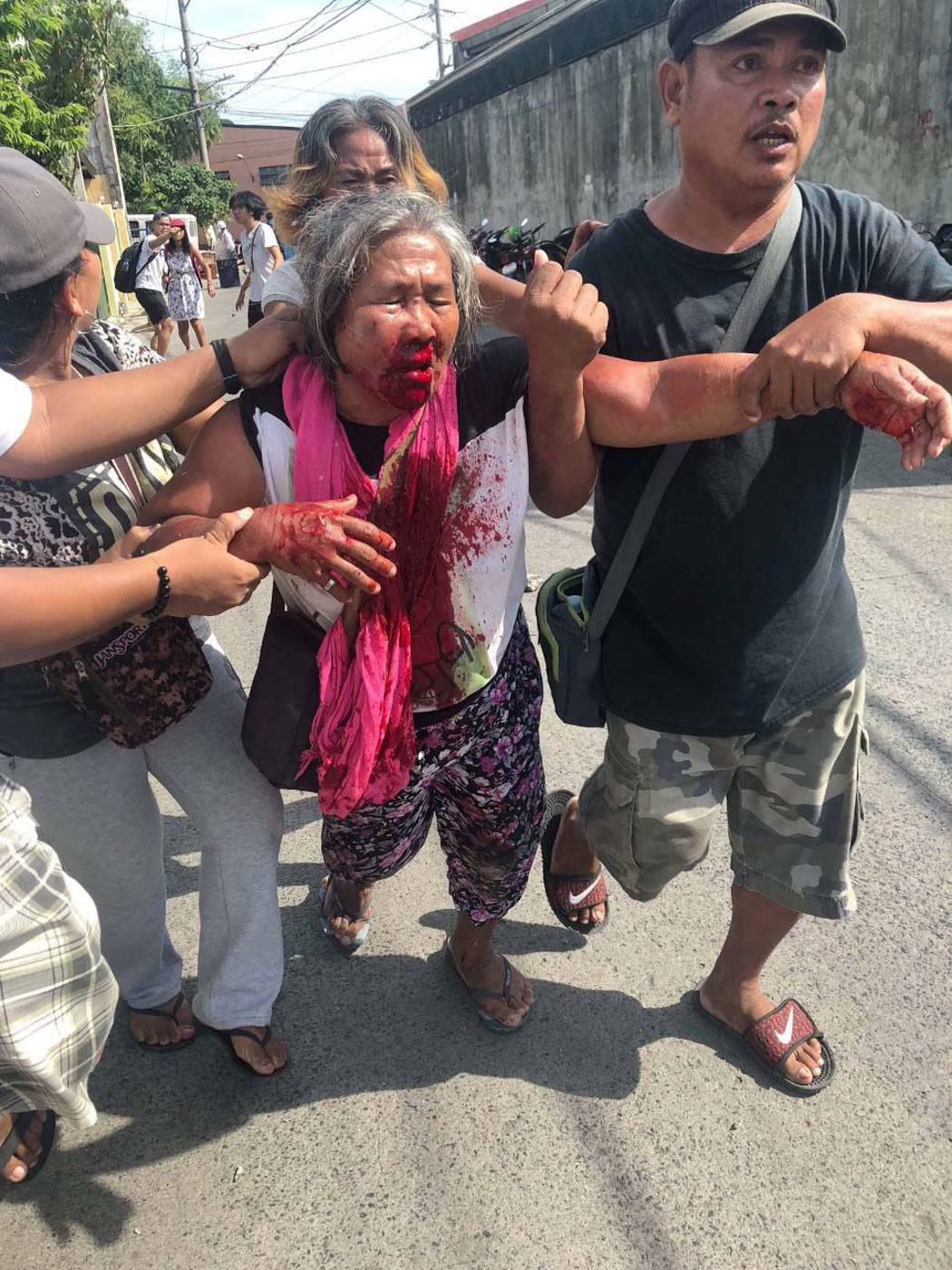 HURT. Violent dispersal of Nutriasia protesters on July 30, 2018. Photo from Anakbayan